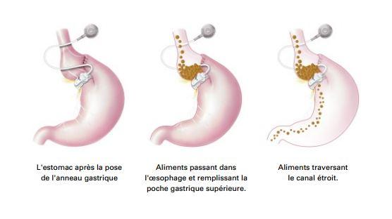 schema anneau gastrique